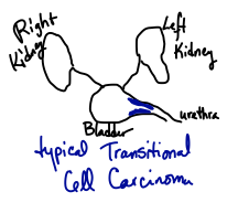 Typical Transitional Cell Carcinoma